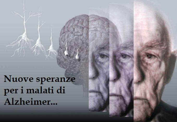 Alzheimer: Nuova frontiera della scienza. Scoperta causa della Malattia. Nuova speranza con nuove cure