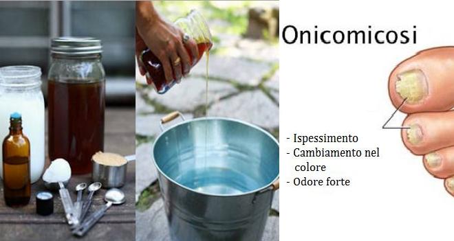 Onicomicosi. Con questo Rimedio Naturale semplice, potrete dir addio alle infezioni fungine!