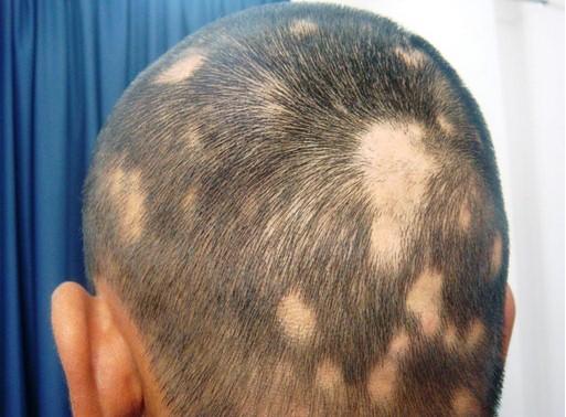 Sempre più stressati e depressi affetti da alopecia.Aglio,succo di cipolla e altri rimedi naturali per curarla