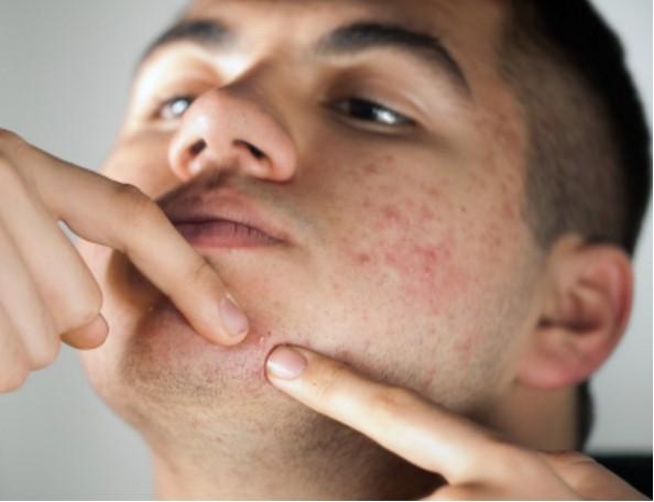 I brufoli indicano il tuo stato di salute in base alla loro posizione sul viso. Ecco perchè
