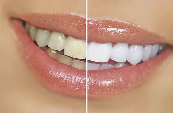 Sbiancare i denti in modo naturale.Quello che il tuo dentista non ti dirà mai