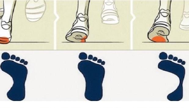 Dove si consumano le tue scarpe? Ecco come individuare le abitudini che danneggiano la salute