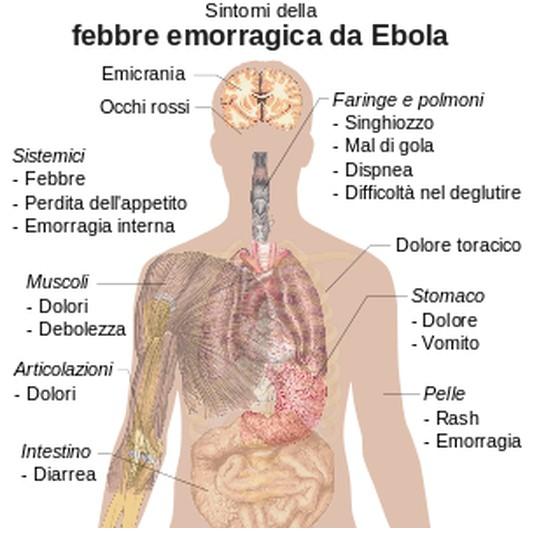 Dal virus Ebola ci si può salvare solo se preso in tempo.Ecco i sintomi e il contagio