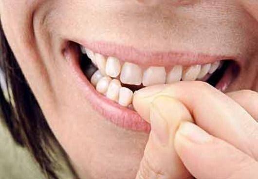 Ti mangi le unghie? Sei affetto da un disturbo chiamato onicofagia. Ecco come smettere