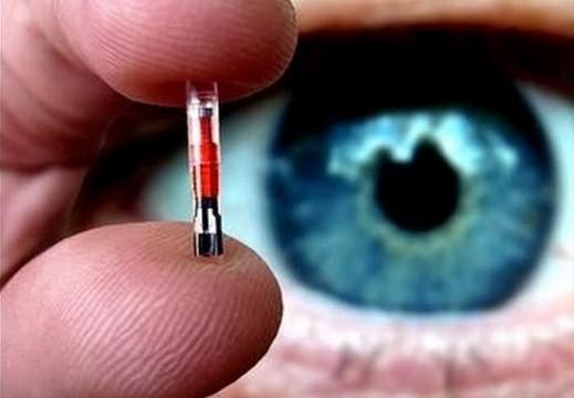 Microchip sottocutaneo:A breve ce lo impianteranno a vita.Ecco perchè