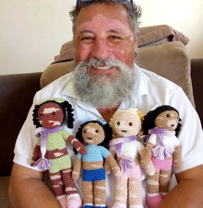 Il nonno che produce bambole con la vitiligine per far sentire meglio i bambini con questa condizione