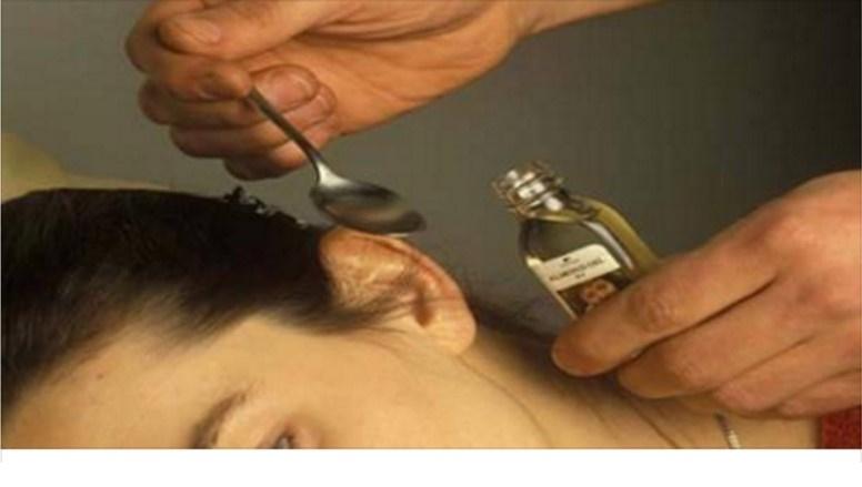 Ecco come pulire l'orecchio e rimuovere i tappi di cerume in modo naturale