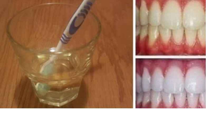 Lo sapevi che l'aceto di mele è un ottimo rimedio naturale per sbiancare i denti?Ecco come usarlo