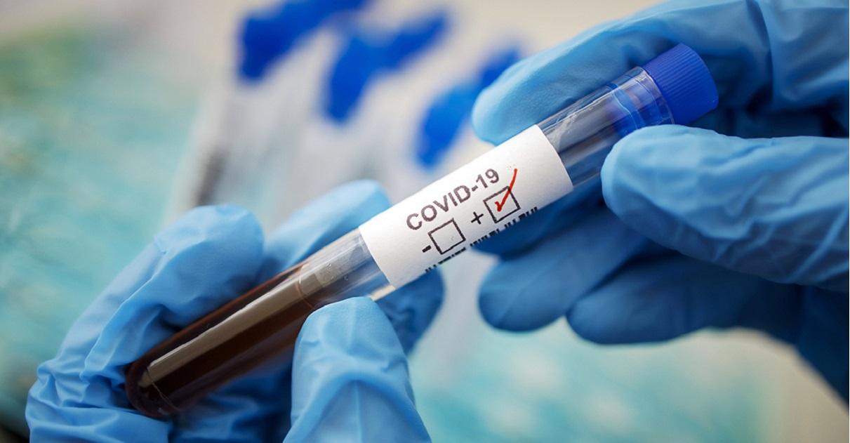 nuovi contagi coronavirus focolai Italia
