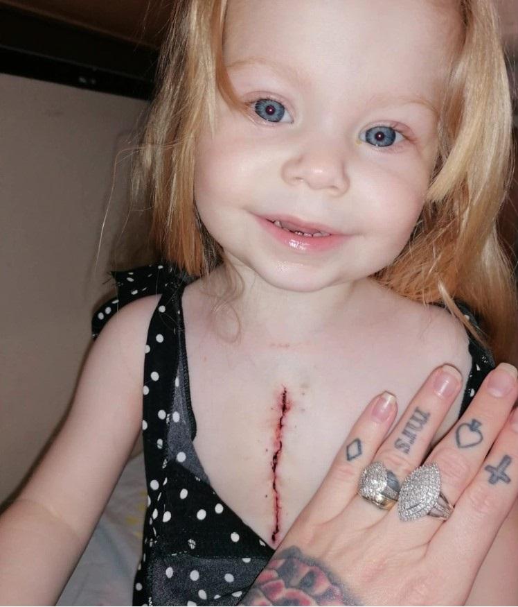 Lacey bimba nasce con mezzo cuore dopo operazione