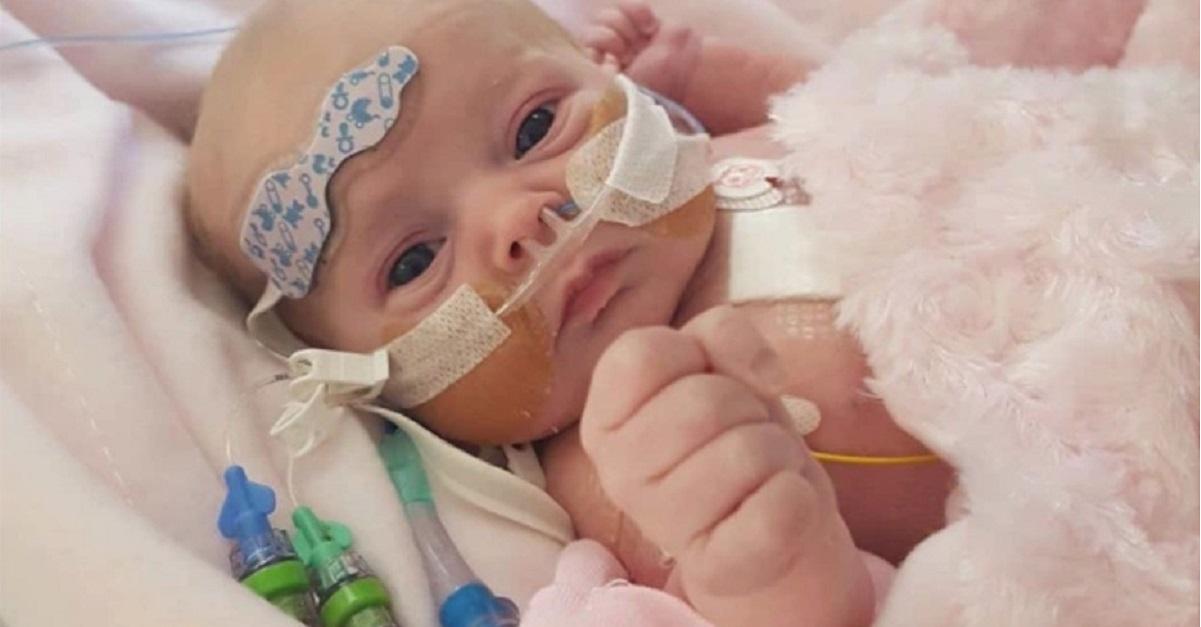 Lacey bimba nasce con mezzo cuore